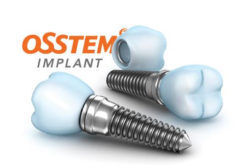 Южно-корейские импланты Osstem